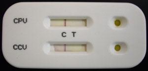 Тест на парвовирусный энтерит и коронавироз отрицательный